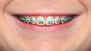 braces near danville in