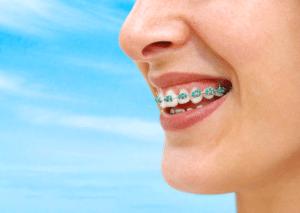 braces near pittsboro in