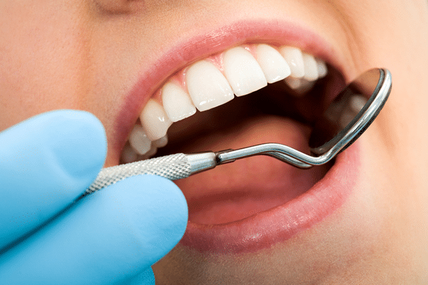 close-up-tooth-cleaning