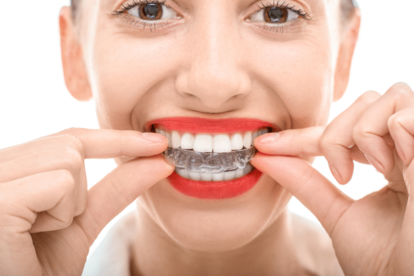close-up-invisalign-tray-put-in-mouth