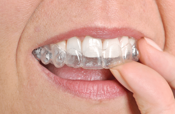 invisalign plainfield in