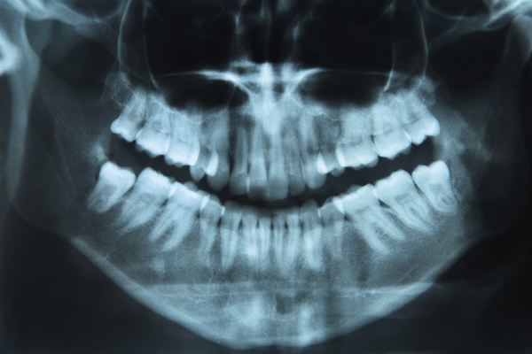 orthodontic-xray